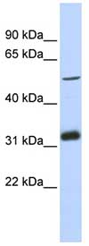 Western blot - TC2N antibody (ab87104)
