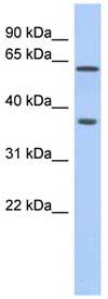 Western blot - ERG antibody (ab87105)