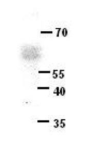 Western blot - Anti-ERG antibody (ab87105)