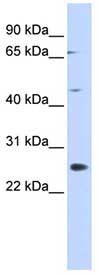 Western blot - SPATA22 antibody (ab87106)