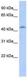 Western blot - Otx1 antibody (ab87112)