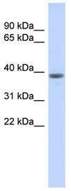 Western blot - WDR21B antibody (ab87113)