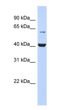 Western blot - PIGK antibody (ab87130)