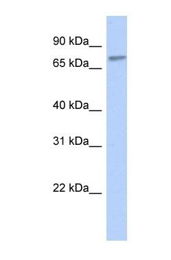 Western blot - ZNF45 antibody (ab87136)