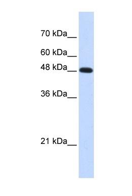 Western blot - DNA polymerase mu antibody (ab87141)