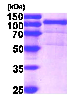 SDS-PAGE - GRP94 protein (His tag) (ab87144)