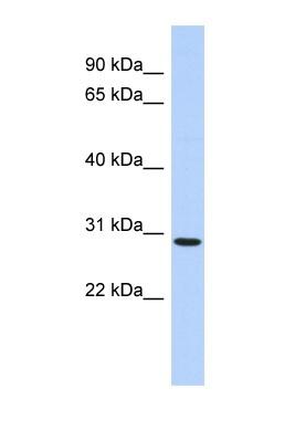 Western blot - SERTAD2 antibody (ab87150)