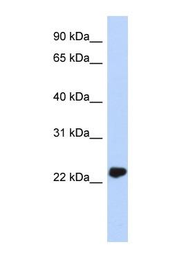 Western blot - UCHL3 antibody (ab87154)