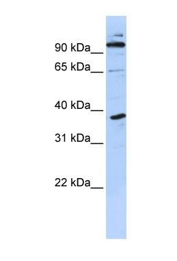 Western blot - PHF11 antibody (ab87156)
