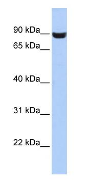 Western blot - LRFN5 antibody (ab87165)