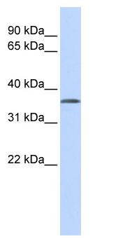 Western blot - TSTA3 antibody (ab87167)