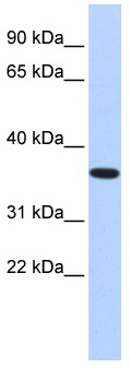 Western blot - CPXCR1 antibody (ab87172)