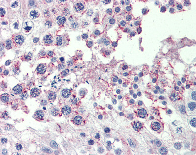 Immunohistochemistry (Formalin/PFA-fixed paraffin-embedded sections) - Anti-CPXCR1 antibody (ab87172)