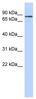 Western blot - ZNF366 antibody (ab87173)