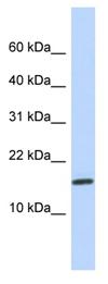 Western blot - Anti-NCRNA00114 antibody (ab87174)