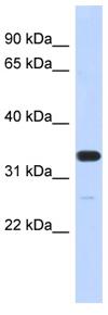 Western blot - FAM76A antibody (ab87183)