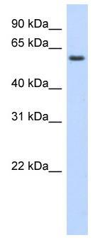 Western blot - KLHDC5 antibody (ab87184)