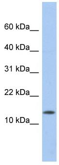 Western blot - ID2 antibody (ab87189)