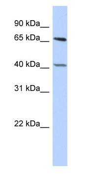 Western blot - RbBP5 antibody (ab87190)
