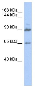 Western blot - GPRASP2 antibody (ab87193)