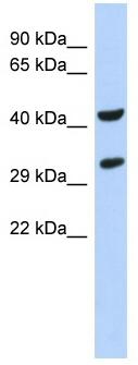 Western blot - ASB8 antibody (ab87194)