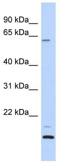 Western blot - TCP11L2 antibody (ab87197)