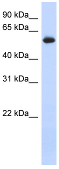Western blot - FRK antibody (ab87201)