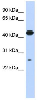 Western blot - PDIK1L antibody (ab87203)