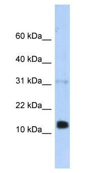 Western blot - REG1 beta antibody (ab87205)