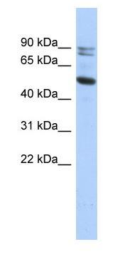 Western blot - Calpain 10 antibody (ab87206)
