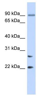 Western blot - Josephin-2 antibody (ab87207)