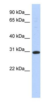 Western blot - 14-3-3 sigma antibody (ab87209)