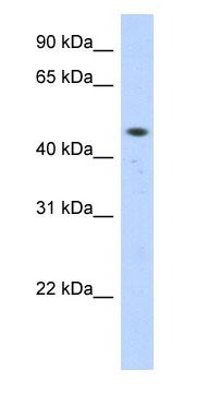 Western blot - ZNF213 antibody (ab87210)