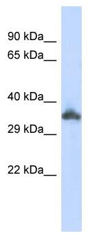 Western blot - KRTAP24-1 antibody (ab87217)