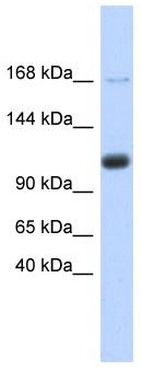 Western blot - SR140 antibody (ab87218)
