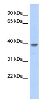 Western blot - MED8 antibody (ab87222)