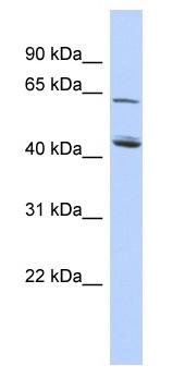 Western blot - C5ORF33 antibody (ab87225)