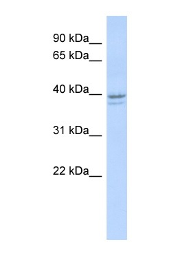 Western blot - RRM2 antibody (ab87227)