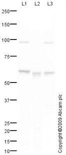 Western blot - Anti-Glucose 6 Phosphate Dehydrogenase antibody (ab87230)