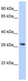 Western blot - LYPLA2 antibody (ab87231)