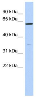 Western blot - ZNF431 antibody (ab87232)
