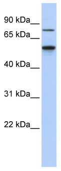 Western blot - Anti-CSNK1G1 antibody (ab87234)