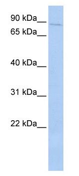 Western blot - PRKRIR antibody (ab87237)