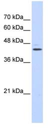 Western blot - GABPB2 antibody (ab87240)