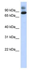 Western blot - SIX homeobox 4 antibody (ab87242)