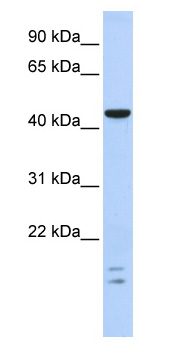 Western blot - BTB/POZ domain containing protein 6 antibody (ab87247)