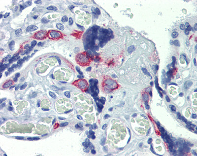 Immunohistochemistry (Formalin/PFA-fixed paraffin-embedded sections) - Anti-ZNF71 antibody (ab87250)