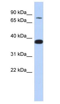 Western blot - ZNF526 antibody (ab87252)
