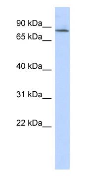 Western blot - APBB2 antibody (ab87255)