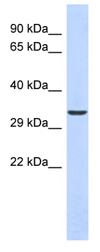 Western blot - VAX1 antibody (ab87257)